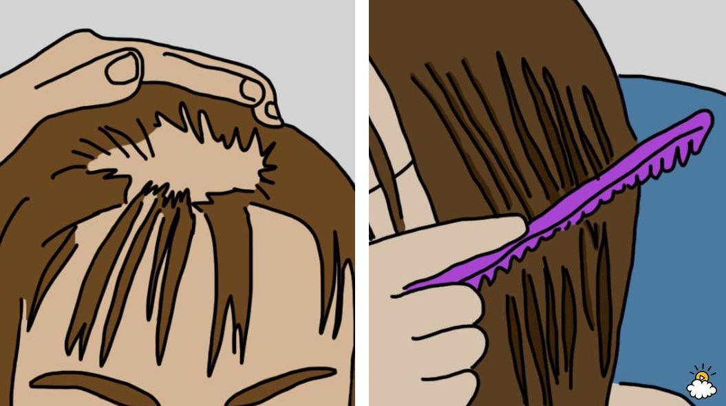【イラスト12枚】女性の抜け毛「原因と対策」